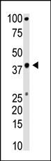 AP12231PU-N - BMI-1 / RNF51