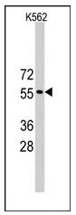 AP12251PU-N - TRIM69 / RNF36