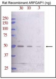 AP12128PU-N - ARFGAP1