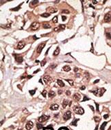 AP11857PU-N - CD292 / BMPR1A
