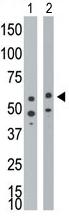 AP11858PU-N - CD292 / BMPR1A