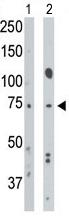 AP11859PU-N - CD292 / BMPR1A