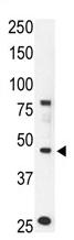 AP11868PU-N - CCBP2