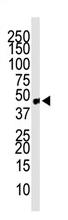 AP11869PU-N - CCBP2