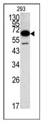 AP12163PU-N - METAP2