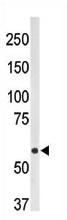 AP11872PU-N - CD73