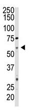 AP11873PU-N - CD73