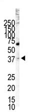 AP11875PU-N - LYVE-1