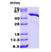 AR09210PU-L - Cardiac Troponin T