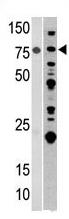AP11745PU-N - ACO2