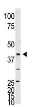 AP11889PU-N - NEUROD1