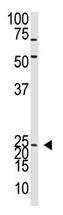 AP11893PU-N - Neurogenin 2
