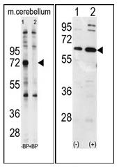 AP12094PU-N - Ubiquilin-1 (UBQLN1)