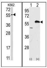 AP12095PU-N - Ubiquilin-1 (UBQLN1)