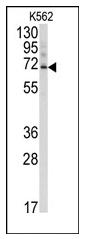 AP12096PU-N - Ubiquilin-3 (UBQLN3)