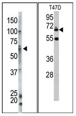 AP12100PU-N - Ubiquilin-1 (UBQLN1)