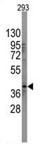 AP11920PU-N - SOX2