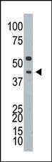 AP12104PU-N - Ataxin-3