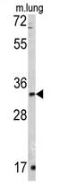 AP11927PU-N - ZFP42