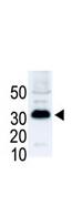 AP11932PU-N - SNAI1