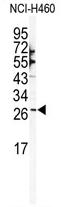 AP11933PU-N - SNAI1