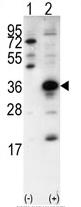 AP11935PU-N - SNAI1