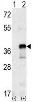 AP11936PU-N - SNAI1