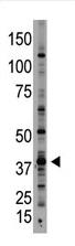 AP11940PU-N - GDF1