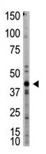 AP11945PU-N - Myostatin