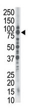AP11953PU-N - SMURF1
