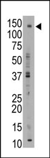 AP13073PU-N - Bile salt export pump / BSEP