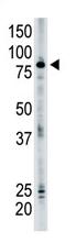 AP11954PU-N - SMURF2