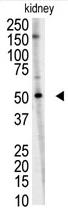 AP11957PU-N - RNF216