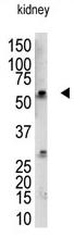 AP11958PU-N - RBCK1 / RNF54