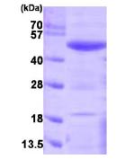 AR09223PU-L - SERPINF1 / PEDF