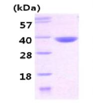 AR09226PU-L - Carbonyl reductase 3