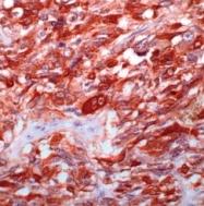 AM11095PU-S - Calcitonin