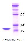 SA6052 - Parathyroid hormone / PTH