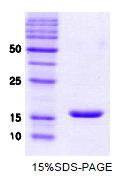 SA6009 - Alpha-Synuclein / SNCA