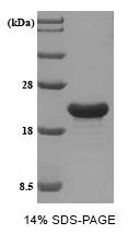 SA6059 - Tumor protein D53 (TPD52L1)