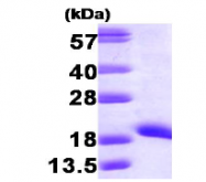 AR09242PU-L - NDP kinase A