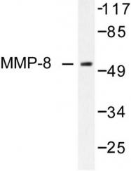 AP06235PU-N - MMP-8