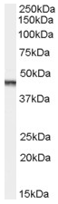 AP15874PU-N - Aurora kinase A