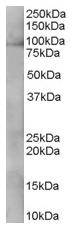 AP15887PU-N - SYF1 / XAB2