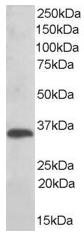 AP15893PU-N - TXNDC1 / TMX1