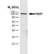 SM1399P - PARP1