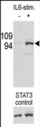 AP11566PU-N - STAT3
