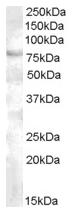 AP15930PU-N - FOXP2