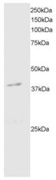 AP15950PU-N - DAPK2 / DRP-1