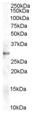 AP15951PU-N - DDAH2